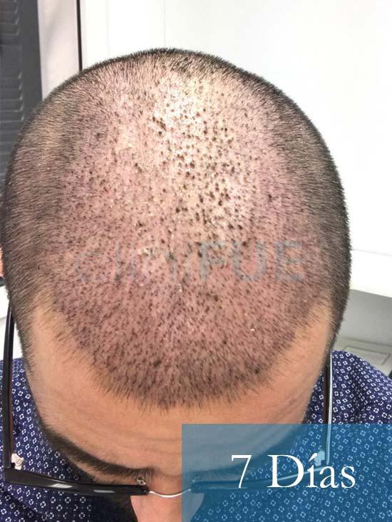 Oscar 33 anos trasplante turquia 7 dias 3