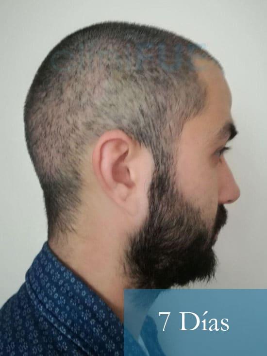 Oscar 33 anos trasplante turquia 7 dias 4