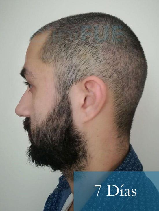 Oscar 33 anos trasplante turquia 7 dias 5
