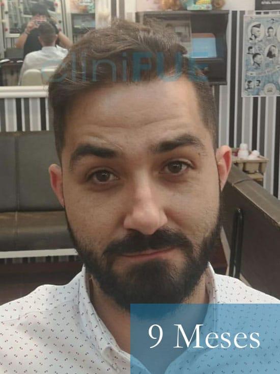 Oscar 33 anos trasplante turquia 9 meses
