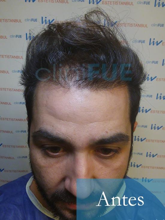 Oscar 33 anos trasplante turquia dic operacion antes 1