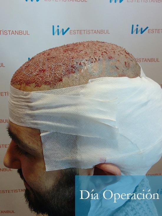 Oscar 33 anos trasplante turquia dia operacion 4