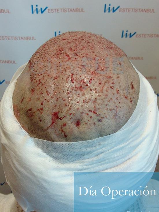 Oscar 33 anos trasplante turquia dia operacion 6