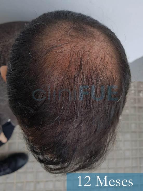 Oscar 38 Valencia antes de trasplante capilar cliniFUE 12 meses 3