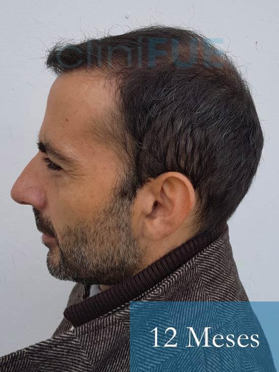Oscar 38 Valencia antes de trasplante capilar cliniFUE 12 meses 5