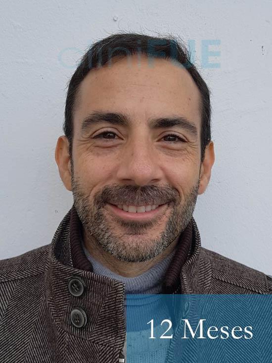 Oscar 38 Valencia antes de trasplante capilar cliniFUE 12 meses