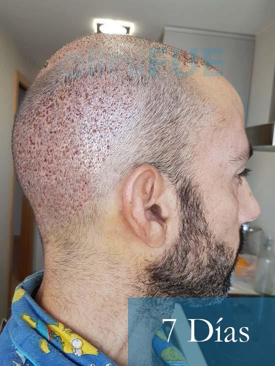 Oscar 38 Valencia antes de trasplante capilar cliniFUE dia operacion 2