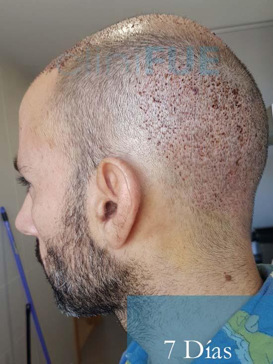 Oscar 38 Valencia antes de trasplante capilar cliniFUE dia operacion 3