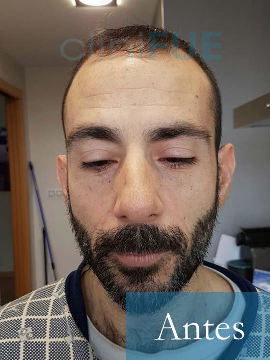 Oscar 38 Valencia_ antes de trasplante capilar cliniFUE