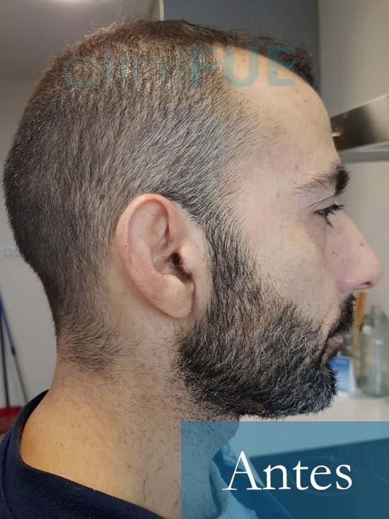 Oscar 38 Valencia_ antes de trasplante capilar cliniFUE 4