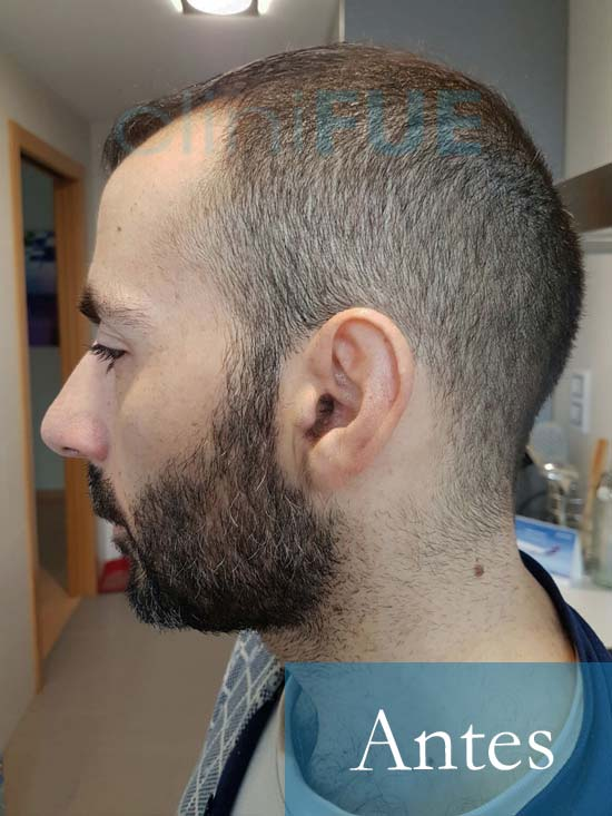 Oscar 38 Valencia_ antes de trasplante capilar cliniFUE 5