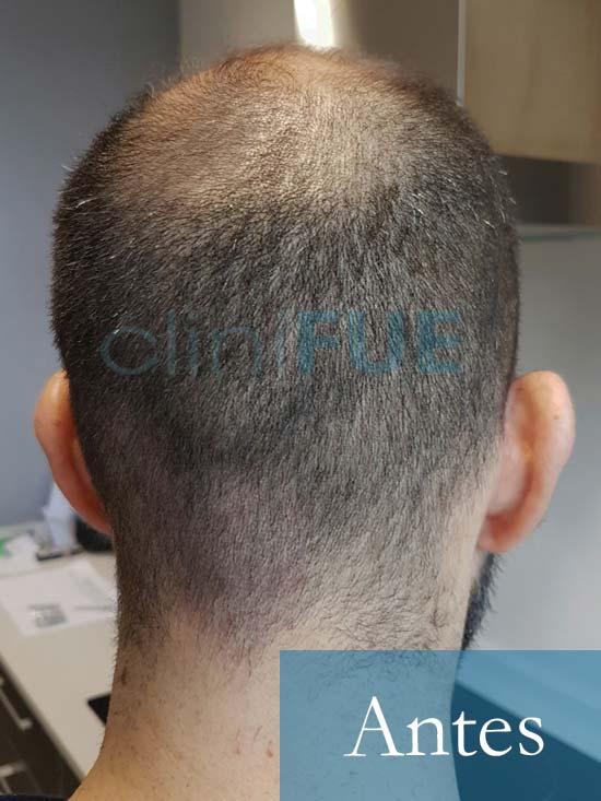 Oscar 38 Valencia_ antes de trasplante capilar cliniFUE 6