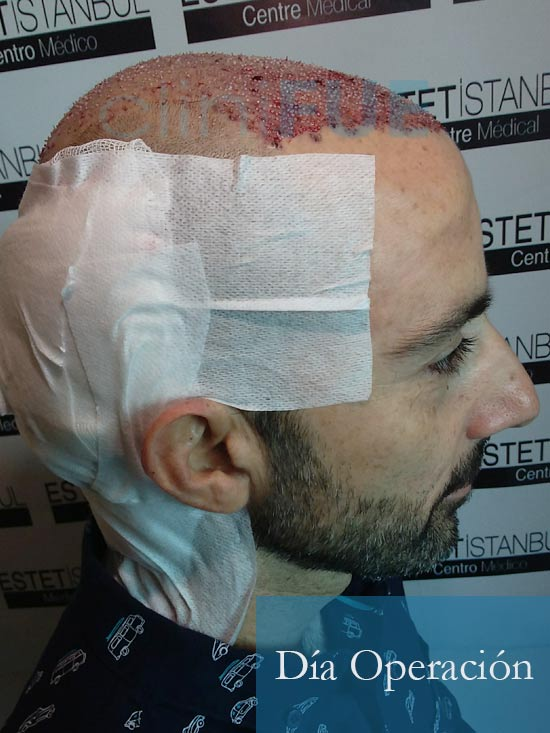 Oscar 38 Valencia antes de trasplante capilar cliniFUE dia operacion 5
