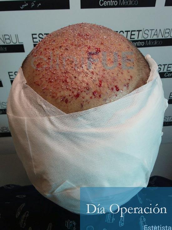 Oscar 38 Valencia antes de trasplante capilar cliniFUE dia operacion 7