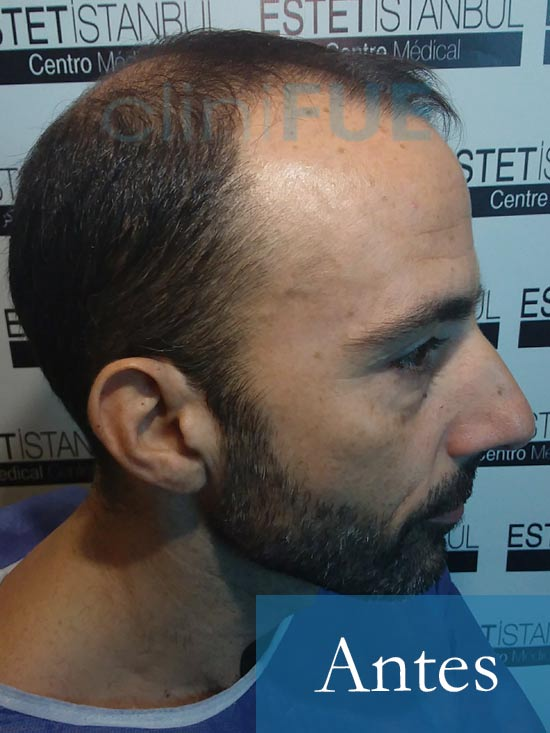 Oscar 38 Valencia antes de trasplante capilar cliniFUE 4