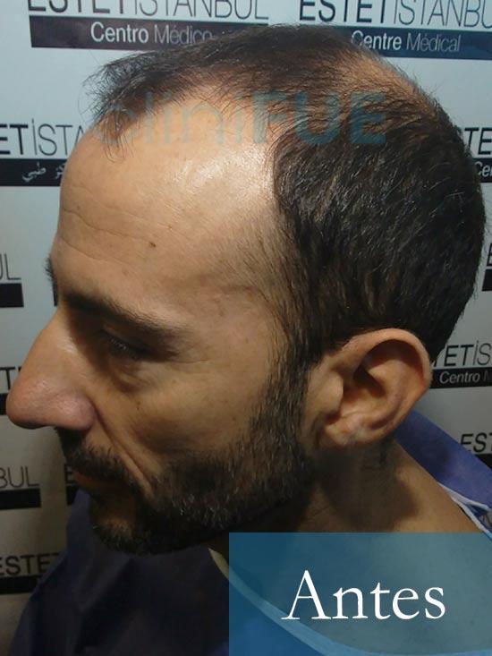 Oscar 38 Valencia antes de trasplante capilar cliniFUE