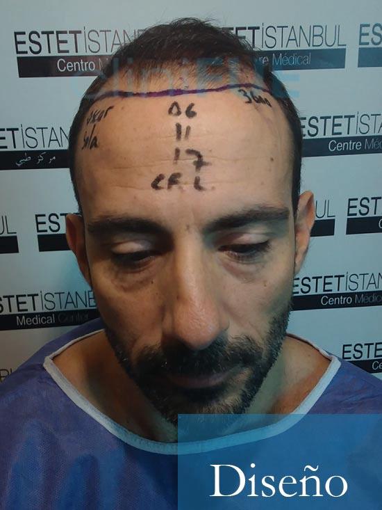 Oscar 38 Valencia antes de trasplante capilar cliniFUE dia operacion