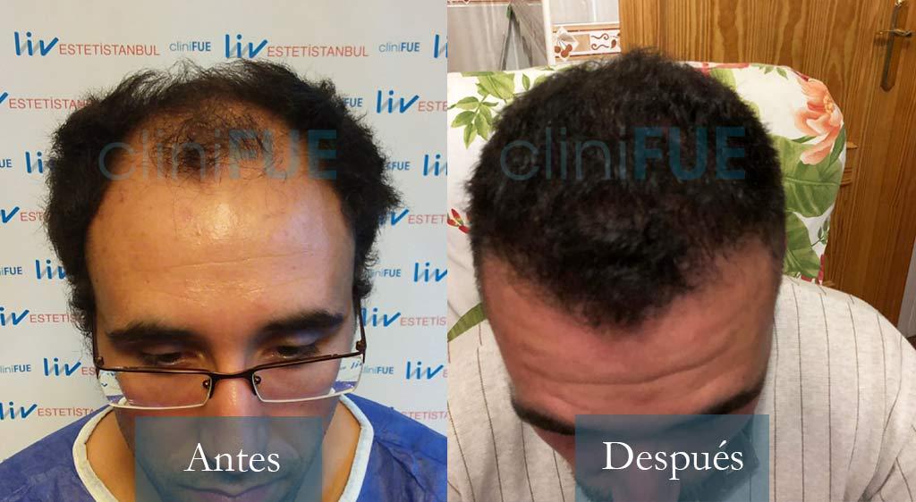 Rodrigo 26 años Almería 3900 UF injerto capilar