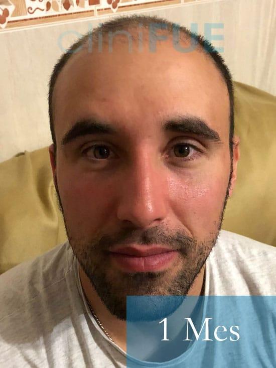Rodrigo 26 años Almería trasplante capilar turquia 1 Mes