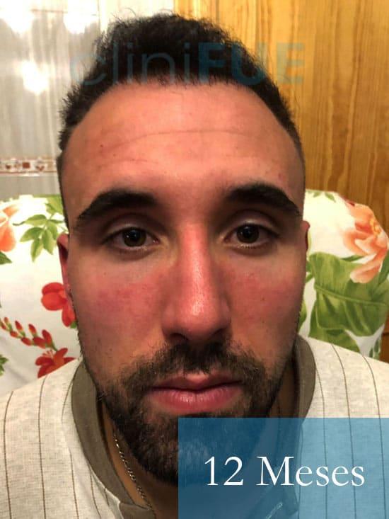 Rodrigo 26 años Almería trasplante capilar turquia 12 Meses