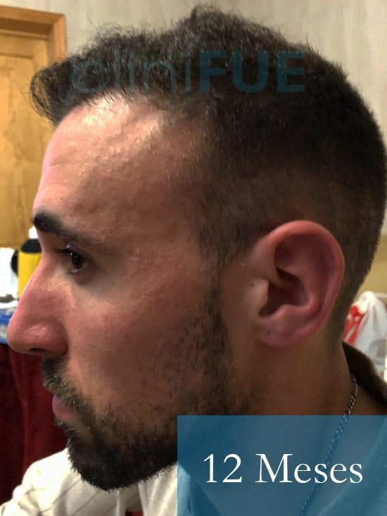 Rodrigo 26 años Almería trasplante capilar turquia 12 Meses 5