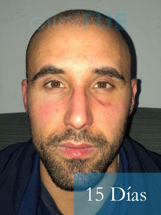 Rodrigo 26 años Almería trasplante capilar turquia 15 dias