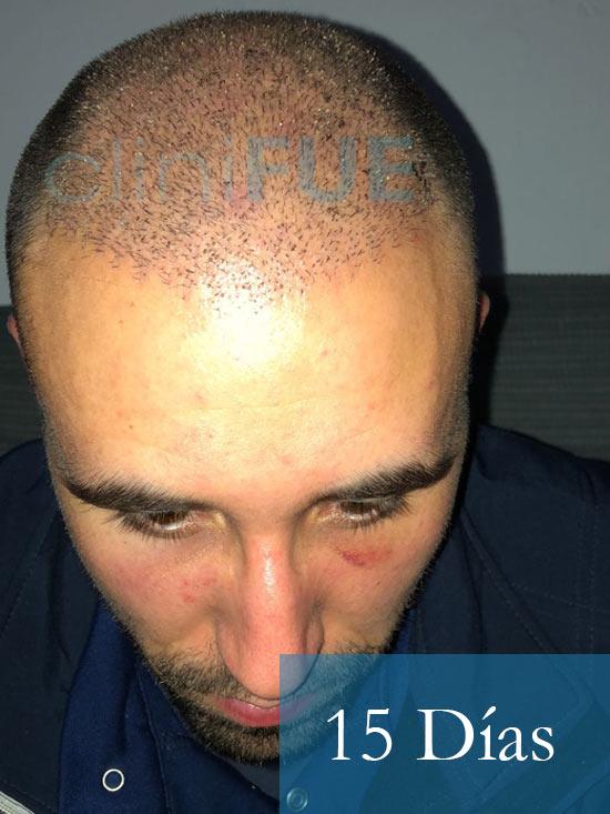 Rodrigo 26 años Almería trasplante capilar turquia 15 dias 2