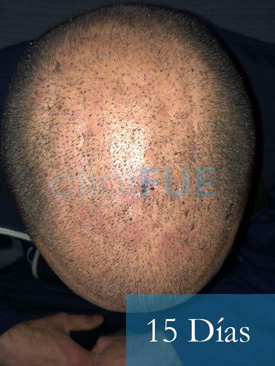 Rodrigo 26 años Almería trasplante capilar turquia 15 dias 3
