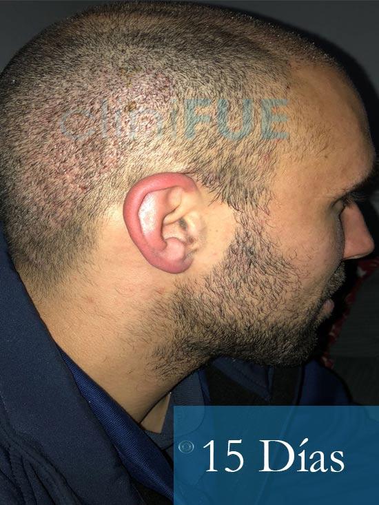 Rodrigo 26 años Almería trasplante capilar turquia 15 dias 4
