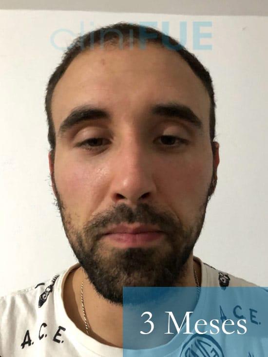 Rodrigo 26 años Almería trasplante capilar turquia 3 Meses