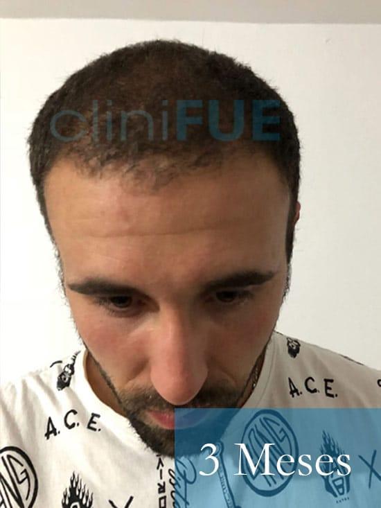 Rodrigo 26 años Almería trasplante capilar turquia 3 Meses 2