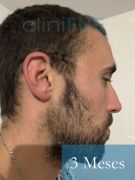 Rodrigo 26 años Almería trasplante capilar turquia 3 Meses 4
