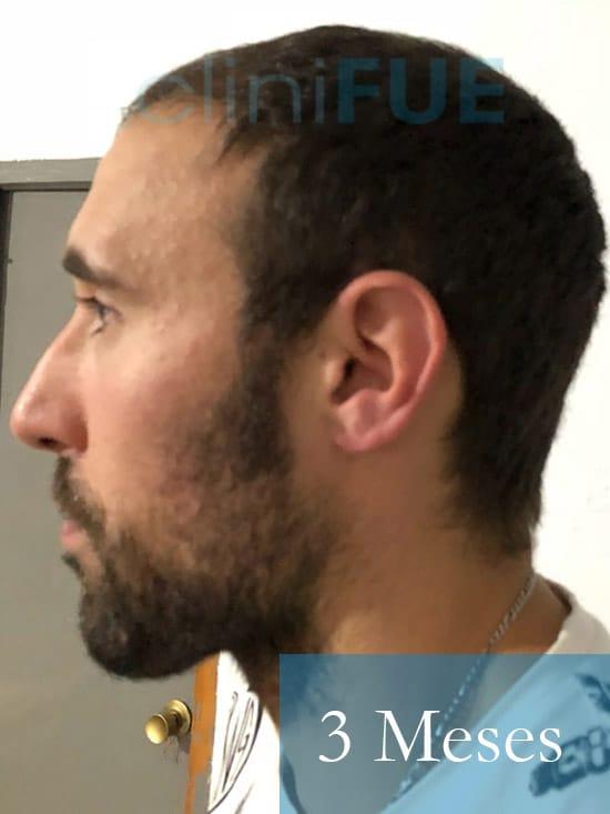 Rodrigo 26 años Almería trasplante capilar turquia 3 Meses 5