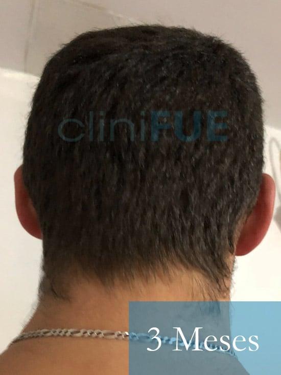 Rodrigo 26 años Almería trasplante capilar turquia 3 Meses 6