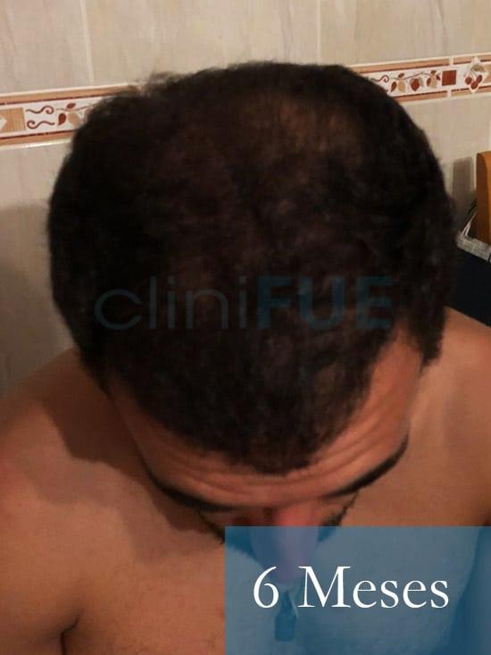 Rodrigo 26 años Almería trasplante capilar turquia 6 Meses 2