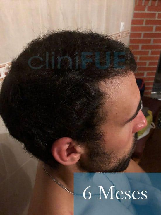 Rodrigo 26 años Almería trasplante capilar turquia 6 Meses 4