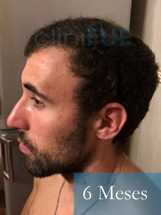 Rodrigo 26 años Almería trasplante capilar turquia 6 Meses 5