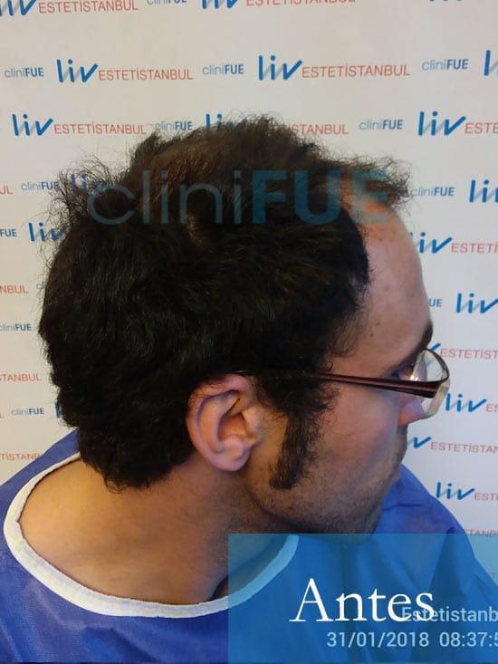 Rodrigo 26 años Almería trasplante capilar turquia Antes 3