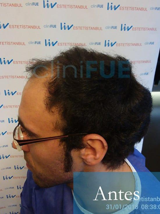 Rodrigo 26 años Almería trasplante capilar turquia Antes 4