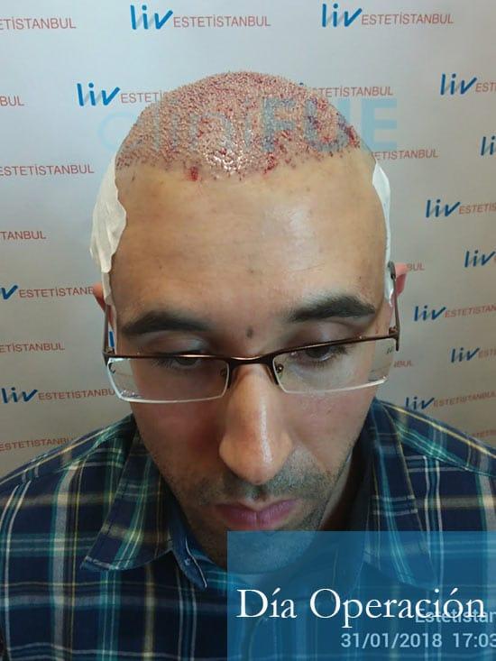 Rodrigo 26 años Almería trasplante capilar turquia dia operacion