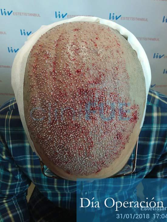 Rodrigo 26 años Almería trasplante capilar turquia dia operacion 2
