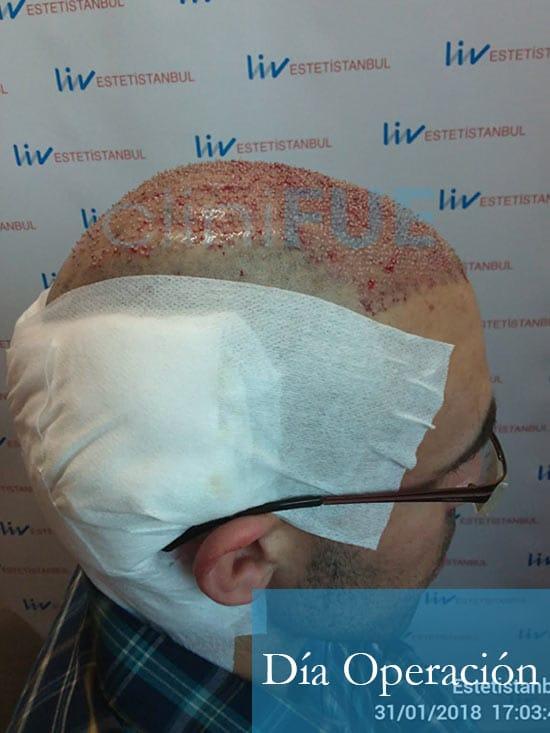 Rodrigo 26 años Almería trasplante capilar turquia dia operacion 3