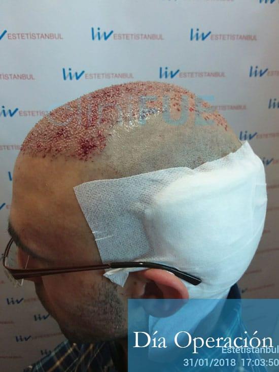 Rodrigo 26 años Almería trasplante capilar turquia dia operacion 5
