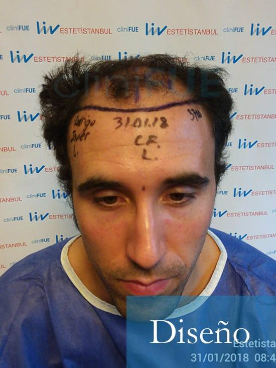 Rodrigo 26 años Almería trasplante capilar turquia dia operacion diseño