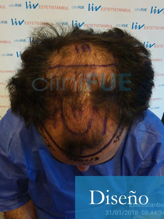 Rodrigo 26 años Almería trasplante capilar turquia dia operacion diseño 2