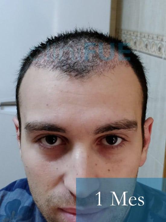 Ruben 28 Toledo injerto capilar turquia 1 mes