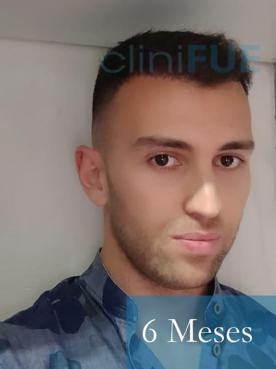 Ruben 28 Toledo injerto capilar turquia 6 meses
