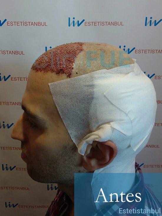 Ruben 28 Toledo injerto capilar turquia Dia Operacion