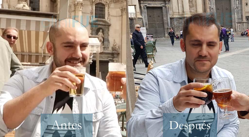 Trasplante capilar de Sebastián Cava, Fotógrafo y Youtuber de Murcia