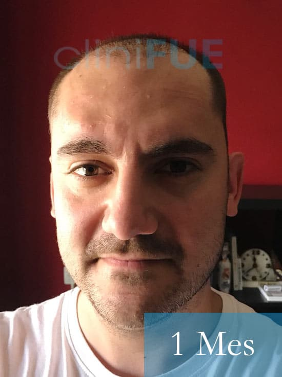 Sebastian 30 años Murcia trasplante capilar turquia 1 mes